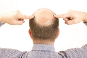 ¿Qué significa soñar con la caída del cabello?